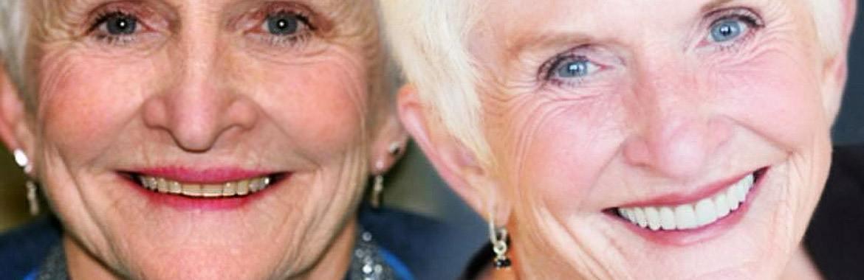 Teeth Whitening, KS